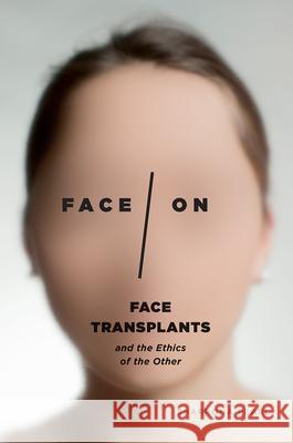Face/On: Face Transplants and the Ethics of the Other Sharrona Pearl 9780226461366 University of Chicago Press