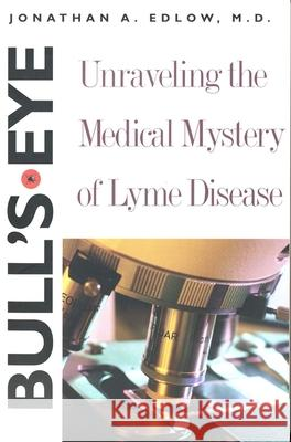 Bull?s-Eye : Unraveling the Medical Mystery of Lyme Disease, Second Edition Jonathan A. Edlow 9780300103700