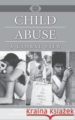 Child Abuse: A Global View Beth M. Schwartz-Kenney Michelle McCauley Michelle A. Epstein 9780313307454
