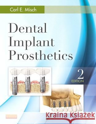Dental Implant Prosthetics Carl E. Misch 9780323078450