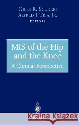 MIS of the Hip and the Knee: A Clinical Perspective Giles R. Scuderi Alfred J. Tria Giles R. Scuderi 9780387403533