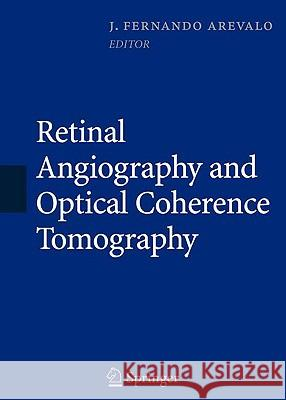 Retinal Angiography and Optical Coherence Tomography J. Fernando Arevalo 9780387689869