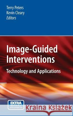 Image-Guided Interventions: Technology and Applications Terry Peters Kevin Cleary 9780387738567