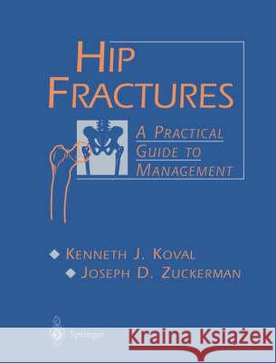 Hip Fractures: A Practical Guide to Management Kenneth J. Koval Joseph D. Zuckerman 9780387983875