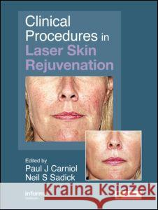 Clinical Procedures in Laser Skin Rejuvenation Paul Carniol Neil S. Sadick 9780415414135