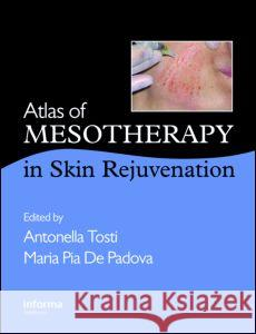 Atlas of Mesotherapy in Skin Rejuvenation Antonella Tosti Maria D 9780415419949