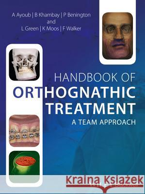 Handbook of Orthognathic Treatment: A Team Approach Khambay, Balvinder; Ayoub, Ashraf; Walker, Fraser 9780470659052
