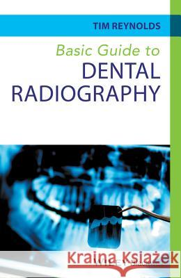 Basic Guide to Dental Radiography Reynolds, Tim 9780470673126