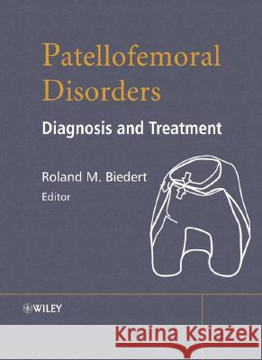 Patellofemoral Disorders: Diagnosis and Treatment Roland Biedert Roland Biedert 9780470850114