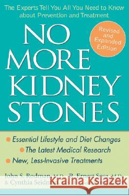 No More Kidney Stones : The Experts Tell You All You Need to Know About Prevention and Treatment John S. Rodman Cynthia Seidman R. Ernest Sosa 9780471739296