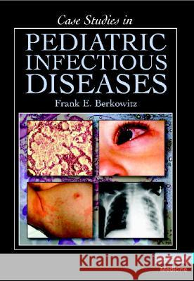 Case Studies in Pediatric Infectious Diseases Frank E. Berkowitz 9780521697613
