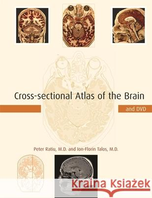 Cross-Sectional Atlas of the Brain and DVD [With DVD-ROM] Peter Ratiu Ion-Florin Talos 9780674019232