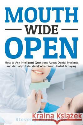 Mouth Wide Open: How to Ask Intelligent Questions about Dental Implants and Actually Understand What Your Dentist Is Saying Steven J. Brazi 9780692728406