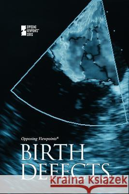 Birth Defects Gale 9780737745054 Greenhaven Press