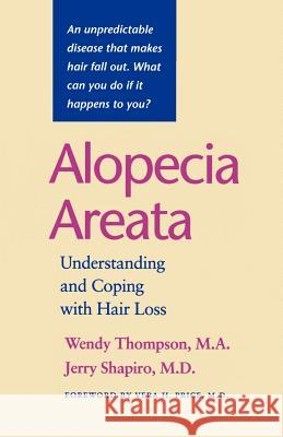 Alopecia Areata : Understanding and Coping with Hair Loss Wendy Thompson Jerry Shapiro Vera H. Price 9780801864728