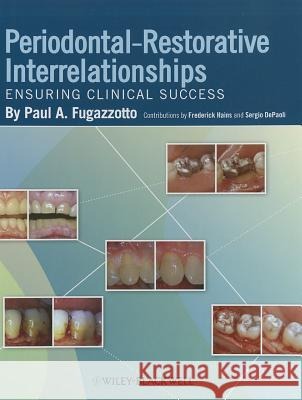 Periodontal-Restorative Interrelationships : Ensuring Clinical Success  Peter F. Drucker Foundation for Nonprofit Management Frances Hesselbein  9780813811673