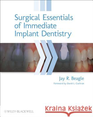 Surgical Essentials of Immediate Implant Dentistry Beagle, Jay R. 9780813816067