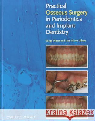 Practical Osseous Surgery in Periodontics and Implant Dentistry Serge Dibart 9780813818122