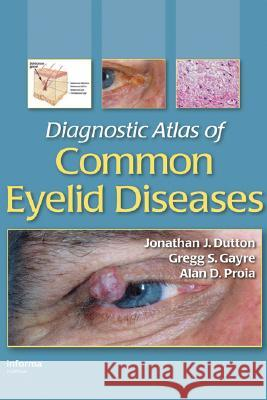 Diagnostic Atlas of Common Eyelid Diseases Jonathan J. Dutton Dutton J. Dutton Gregg S. Gayre 9780824728397