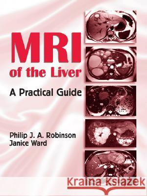 MRI of the Liver: A Practical Guide Philip J. A. Robinson Ward Janice 9780824728717