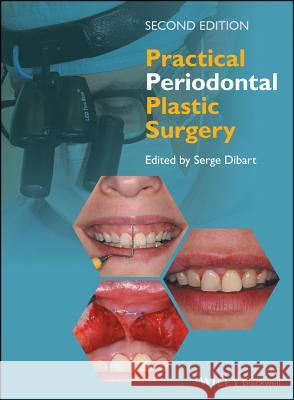 Practical Periodontal Plastic Surgery Serge Dibart 9781118360651