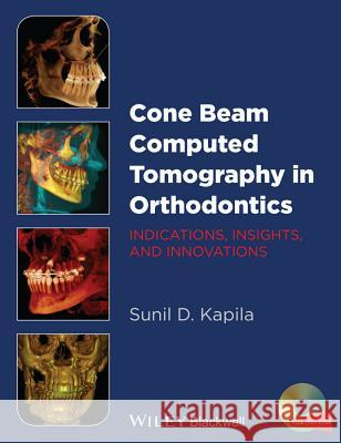 Cone Beam Computed Tomography in Orthodontics: Indications, Insights, and Innovations  9781118448489