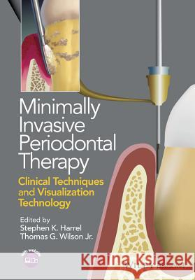 Minimally Invasive Periodontal Therapy: Clinical Techniques and Visualization Technology Harrel, Stephen K.; Wilson, Thomas G. 9781118607626