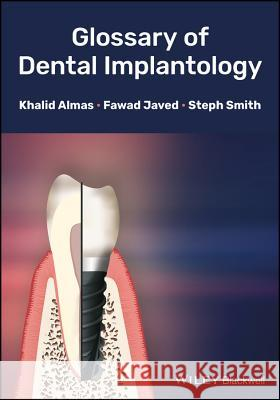 Glossary of Dental Implantology Khalid Almas Javed                                    Steph Smith 9781118626887