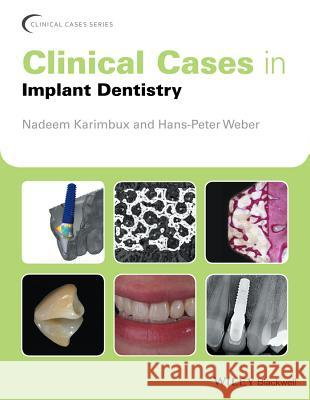 Clinical Cases in Implant Dentistry  9781118702147