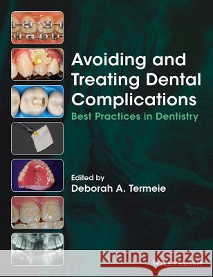 Avoiding and Treating Dental Complications: Best Practices in Dentistry Termeie, Deborah 9781118988022