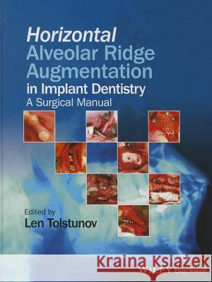 Horizontal Alveolar Ridge Augmentation in Implant Dentistry: A Surgical Manual Tolstunov, Len 9781119019886