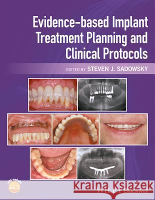 Evidence-Based Implant Treatment Planning and Clinical Protocols Steven J. Sadowsky 9781119080039