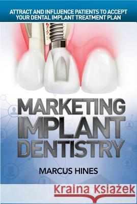 Marketing Implant Dentistry: Attract and Influence Patients to Accept Your Dental Implant Treatment Plan Marcus Hines 9781119114512