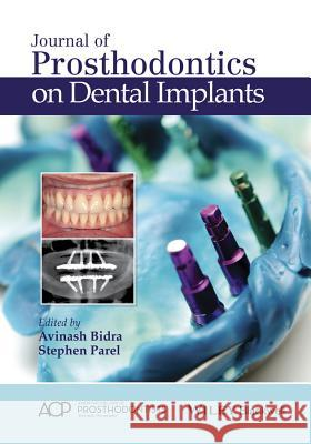 Journal of Prosthodontics on Dental Implants  9781119115366