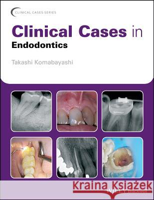 Clinical Cases in Endodontics Takashi Komabayashi 9781119147046