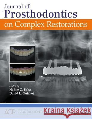Journal of Prosthodontics on Complex Restorations Nadim Z., Ed. Baba David L. Guichet 9781119274490