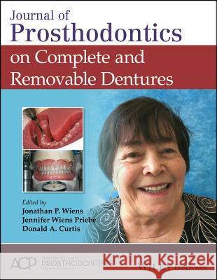 Journal of Prosthodontics on Complete and Removable Dentures Jonathan P. Wiens Jennifer Wien Donald A. Curtis 9781119442622
