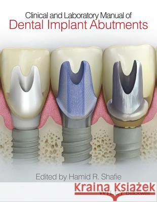 Clinical and Laboratory Manual of Dental Implant Abutments Shafie, Hamid R. 9781119949817