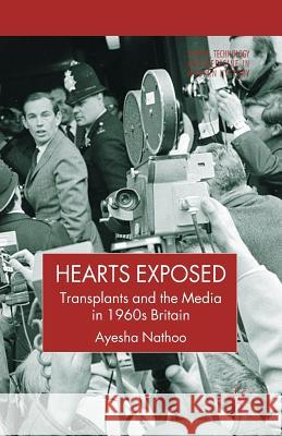 Hearts Exposed: Transplants and the Media in 1960s Britain A Nathoo   9781349541355 Palgrave MacMillan