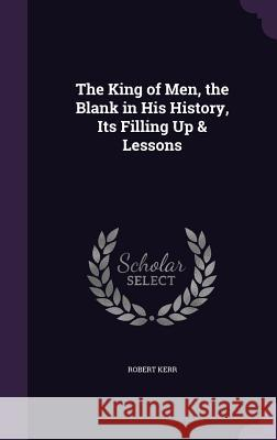 The King of Men, the Blank in His History, Its Filling Up & Lessons Robert Kerr, Frs   9781358535864