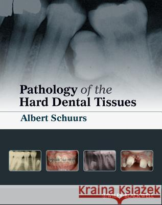 Pathology of the Hard Dental Tissues Albert Schuurs 9781405153652
