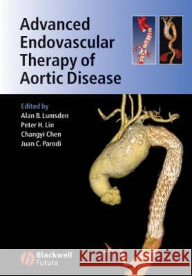 Advanced Endovascular Therapy of Aortic Disease Lumsden                                  Alan Lumsden Changyi Chen 9781405155700
