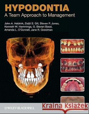 Hypodontia Hypodontia: A Team Approach to Management a Team Approach to Management John A. Hobkirk Daljit S. Gill Steven P. Jones 9781405188593