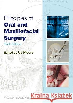 Principles of Oral and Maxillofacial Surgery U J Moore 9781405199988