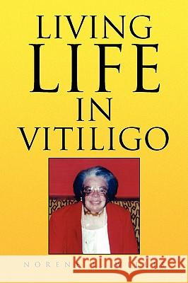 Living Life in Vitiligo Norene L. Willis 9781436348249
