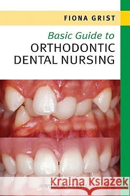 Basic Guide to Orthodontic Dental Nursing  Grist 9781444333183
