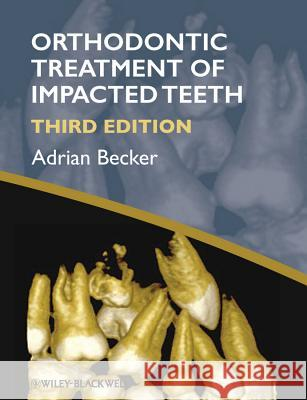 Orthodontic Treatment of Impac Adrian Becker 9781444336757