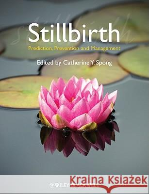 Stillbirth: Prediction, Prevention and Management Catherine Y. Spong   9781444337068