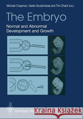 The Embryo : Normal and Abnormal Development and Growth Michael G. Chapman J. Gedis Grudzinskas Tim Chard 9781447118046 Springer