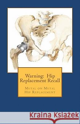Warning: Hip Replacement Recall: Warning: Hip Replacement Recall Metal on Metal Devices Lisa G. Douglas 9781461042358